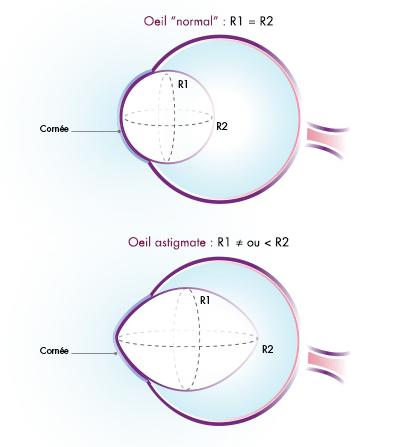 Définition de l'astigmatisme